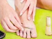 Kako da izlečite urasli nokat
