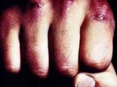NS: Masovna tuča, ima povređenih
