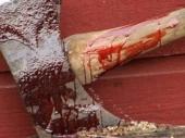 PK: Komšiji sekirom slomio lobanju