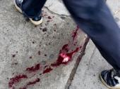 Izboden mladić u Kosovskoj Mitrovici