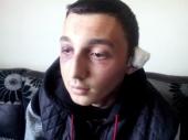 Oteli ga, pretukli i odsekli mu deo uha zbog 100 evra