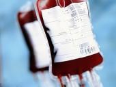 Zika virus se prenosi i transfuzijom!